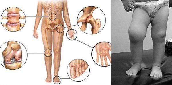 Реактивный артрит у детей: симптомы и лечение коленного сустава у ребенка