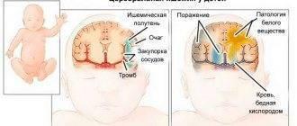 Симптомы и признаки сотрясения головного мозга у грудничка, возможные последствия