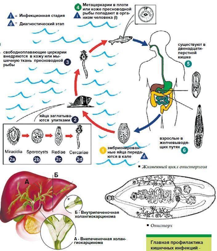 Описторхоз у детей: симптомы и лечение препаратами, народными средствами