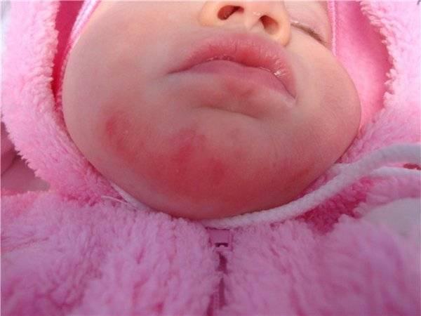 Сыпь под носом у ребенка фото с пояснениями