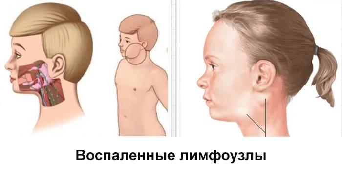 Что делать, если у ребенка на шее увеличены лимфоузлы: основные причины и особенности воспаленного состояния, а также тактика и способы его лечения