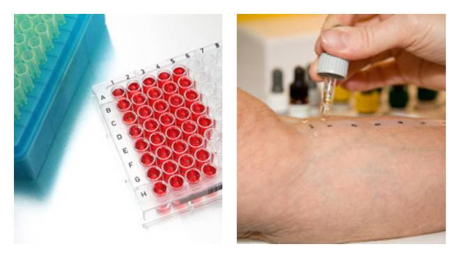 Тест на аллергены (аллергопробы): методики, показания