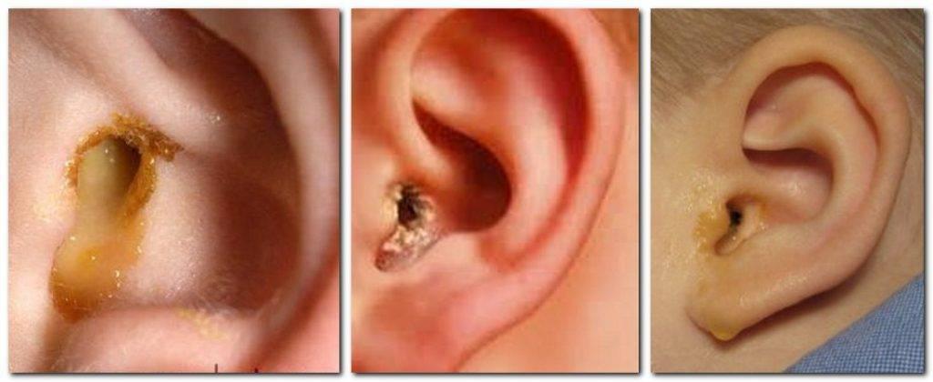 Коричневая сера в ушах у ребенка | медик03