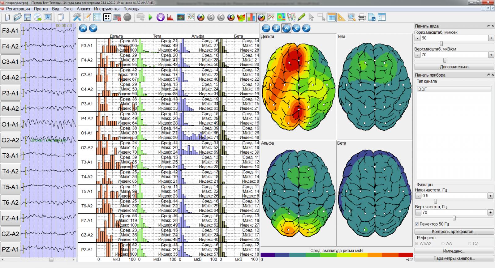 Электроэнцефалография (ээг): суть обследования, что выявляет, проведение, результаты