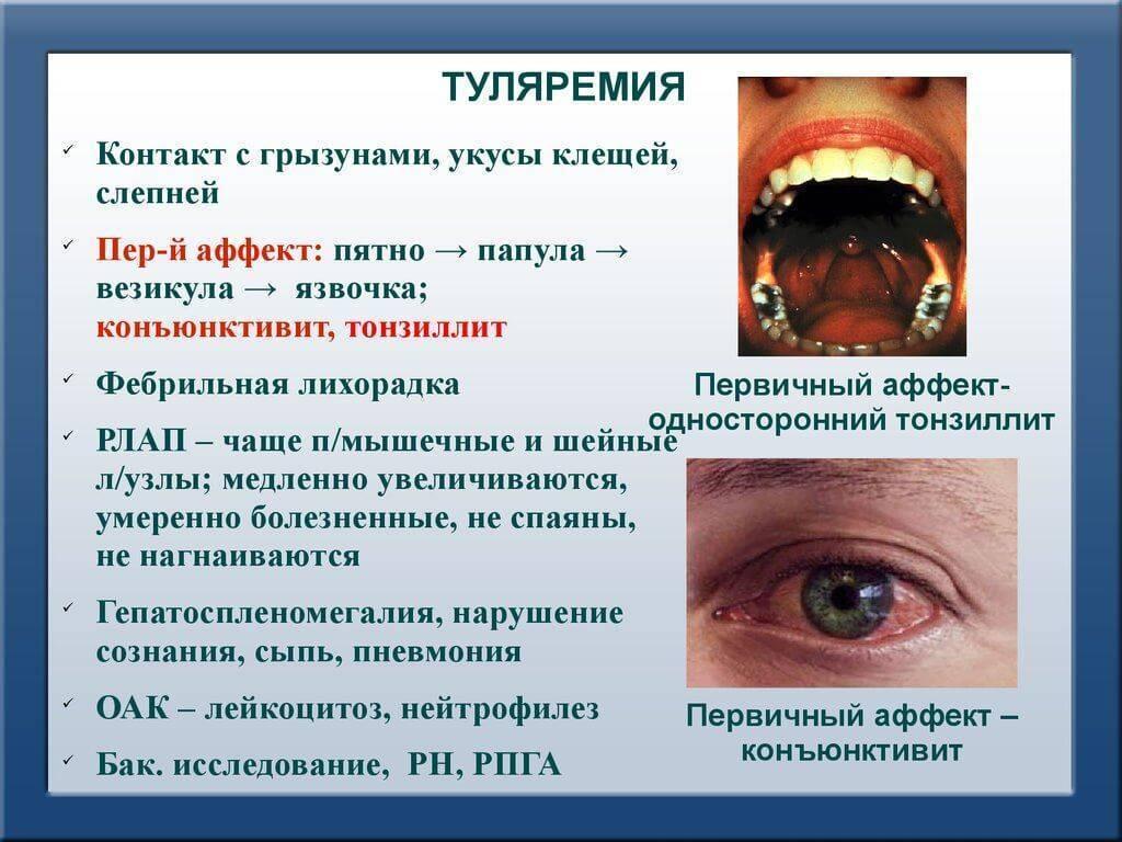 Шейный лимфаденит у детей, взрослых - причины, лечение