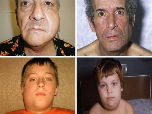 Паротит у детей (свинка; ): симптомы, лечение и профилактика, фото на начальной стадии