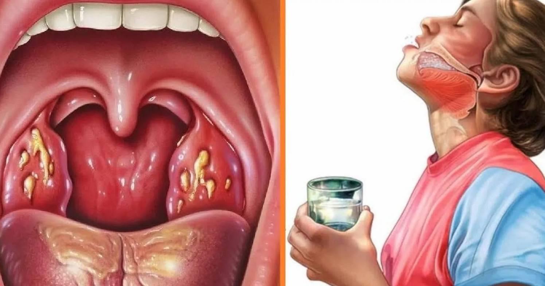 Белый налет в горле у взрослого и ребенка: что делать и как лечить
