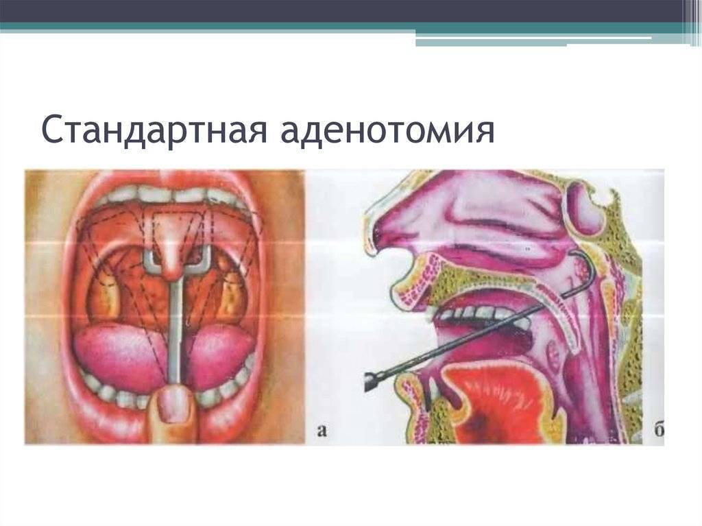 Реабилитация после удаления аденоидов: как проходит процесс