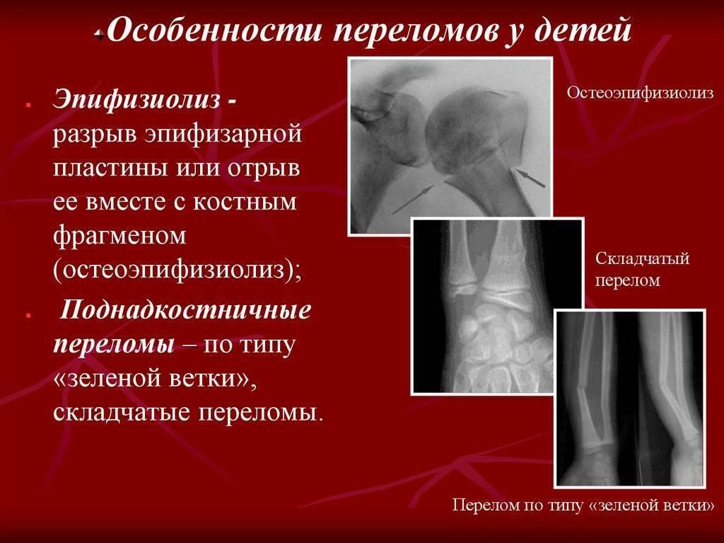 Травмы верхних и нижних конечностей у детей: симптомы, лечение ушибов, вывихов, растяжений и переломов