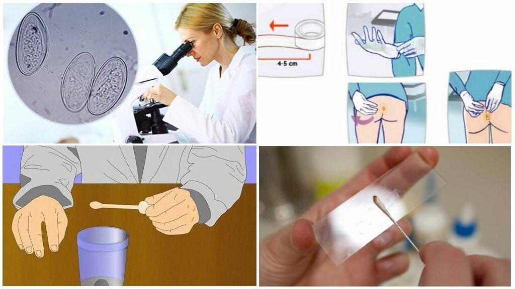 Симптомы энтеробиоза: признаки заражения и методы лечения