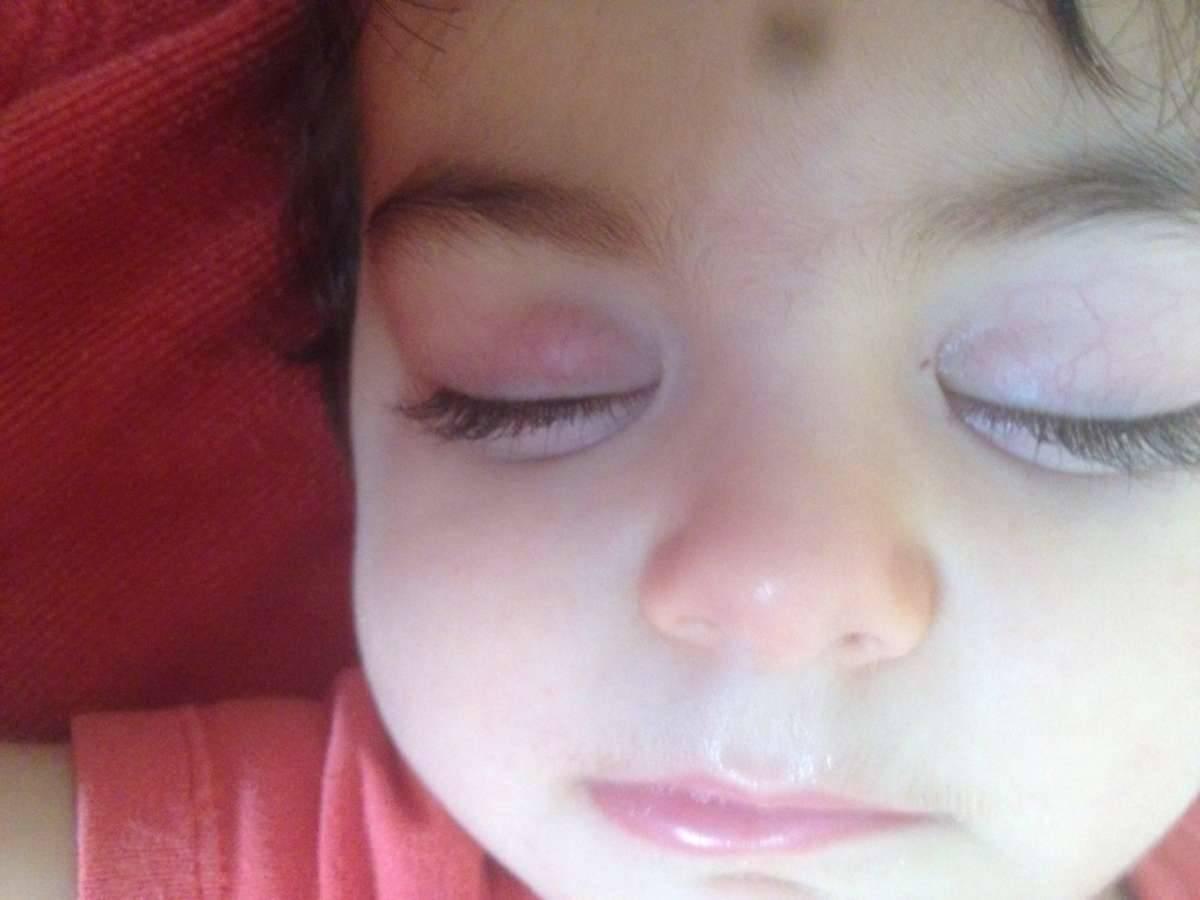 Симптомы и лечение халязиона век у ребенка