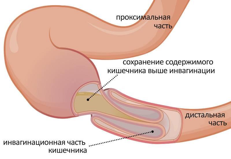 Стеноз кишечника у новорожденных. врожденная кишечная непроходимость у новорожденных - в клинике