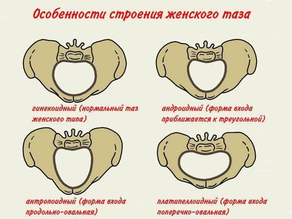 Ощущения при расхождении костей таза при беременности
