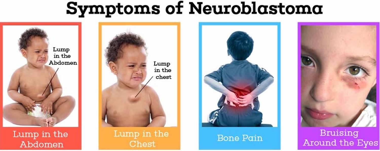 Нейробластома у детей: что это, симптомы, 4 стадия
