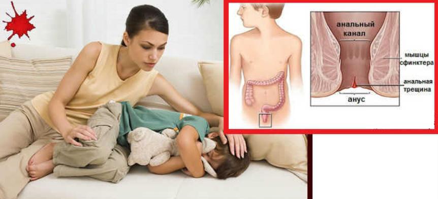 Ребенок жалуется на частые боли в животе. что делать?