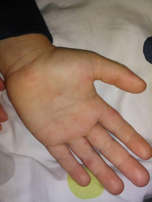 Энтеровирусная инфекция признаки у детей лечение рука нога рот