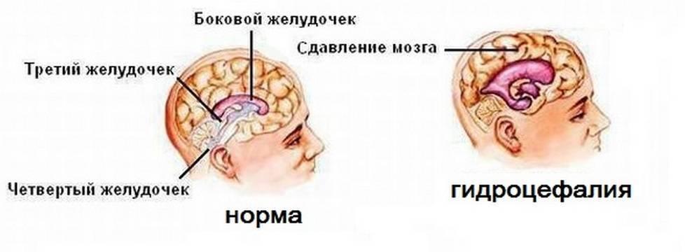 Органическое поражение головного мозга у детей