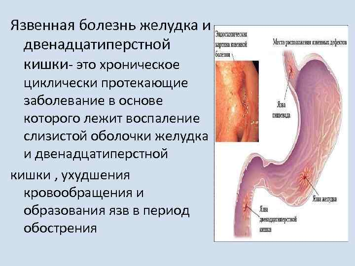 Язвенная болезнь желудка и двенадцатиперстной кишки: лечение