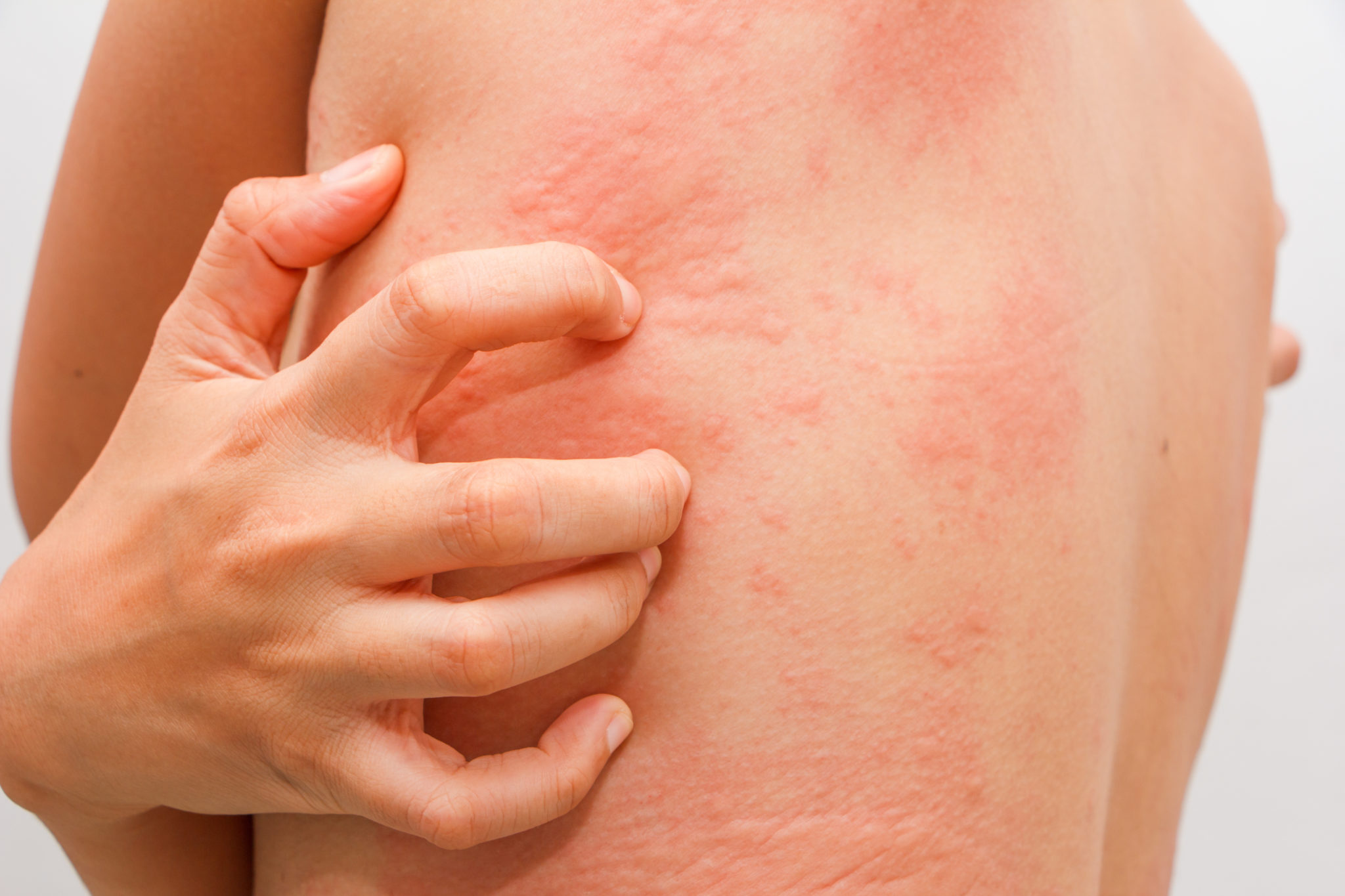 Аллергия на коже красные пятна у ребенка – что это значит