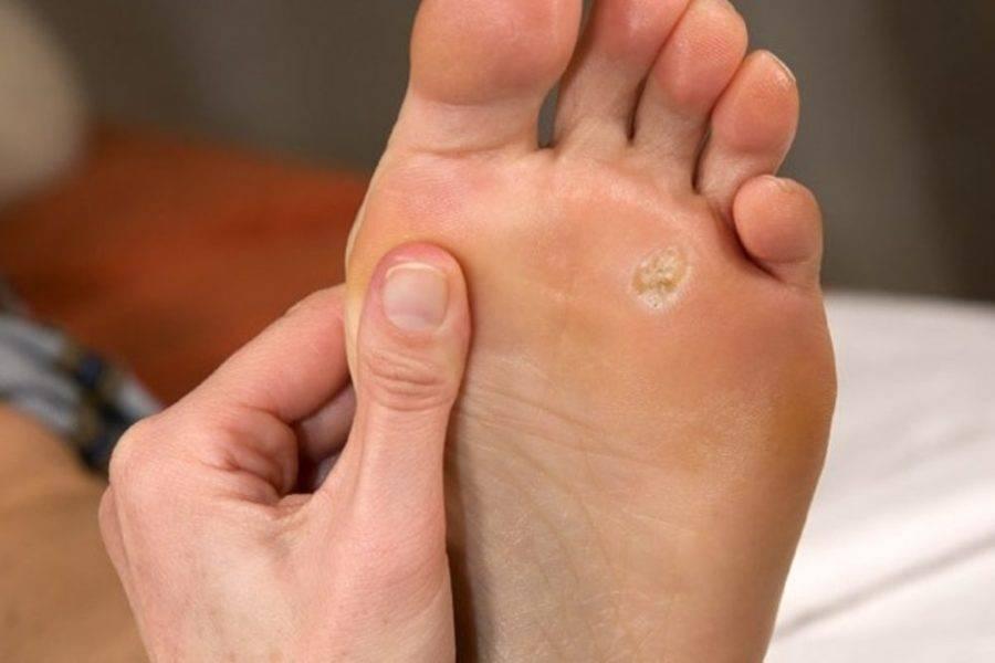 Мозоль на ногах у ребенка: причины появления на ступнях и пальцах, методы лечение, симптомы