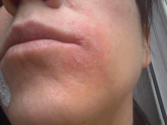 Шелушится кожа у взрослого: что делать, если щеки красные и шершавые; причины корочки на лице