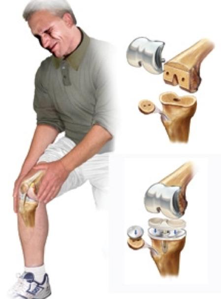 Болят колени при приседании: основные причины появления недуга. болят колени при вставании: что нужно делать и как лечить - автор екатерина данилова - журнал женское мнение