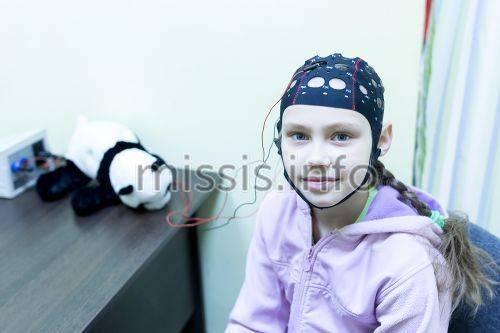 Транскраниальная микрополяризация (ткмп) головного мозга