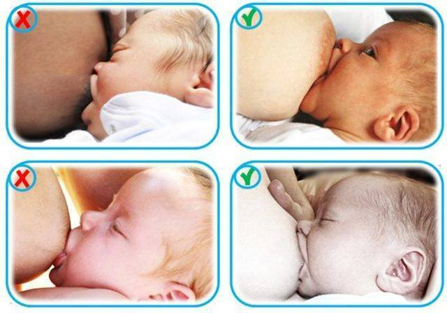Рвота у новорожденного ребенка: срыгнул после кормления грудным молоком, много и каждый раз