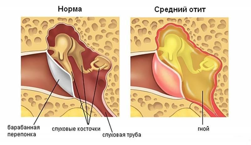 Неприятный запах у ребенка из уха: причины, лечение pulmono.ru неприятный запах у ребенка из уха: причины, лечение
