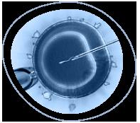 Эко с донорской яйцеклеткой