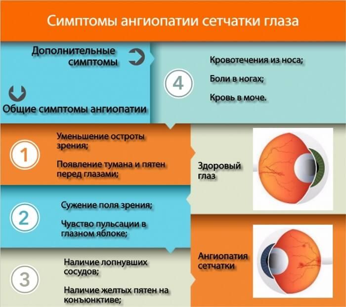 ✅ ангиопатия сетчатки глаза у ребенка что это - денталюкс.su