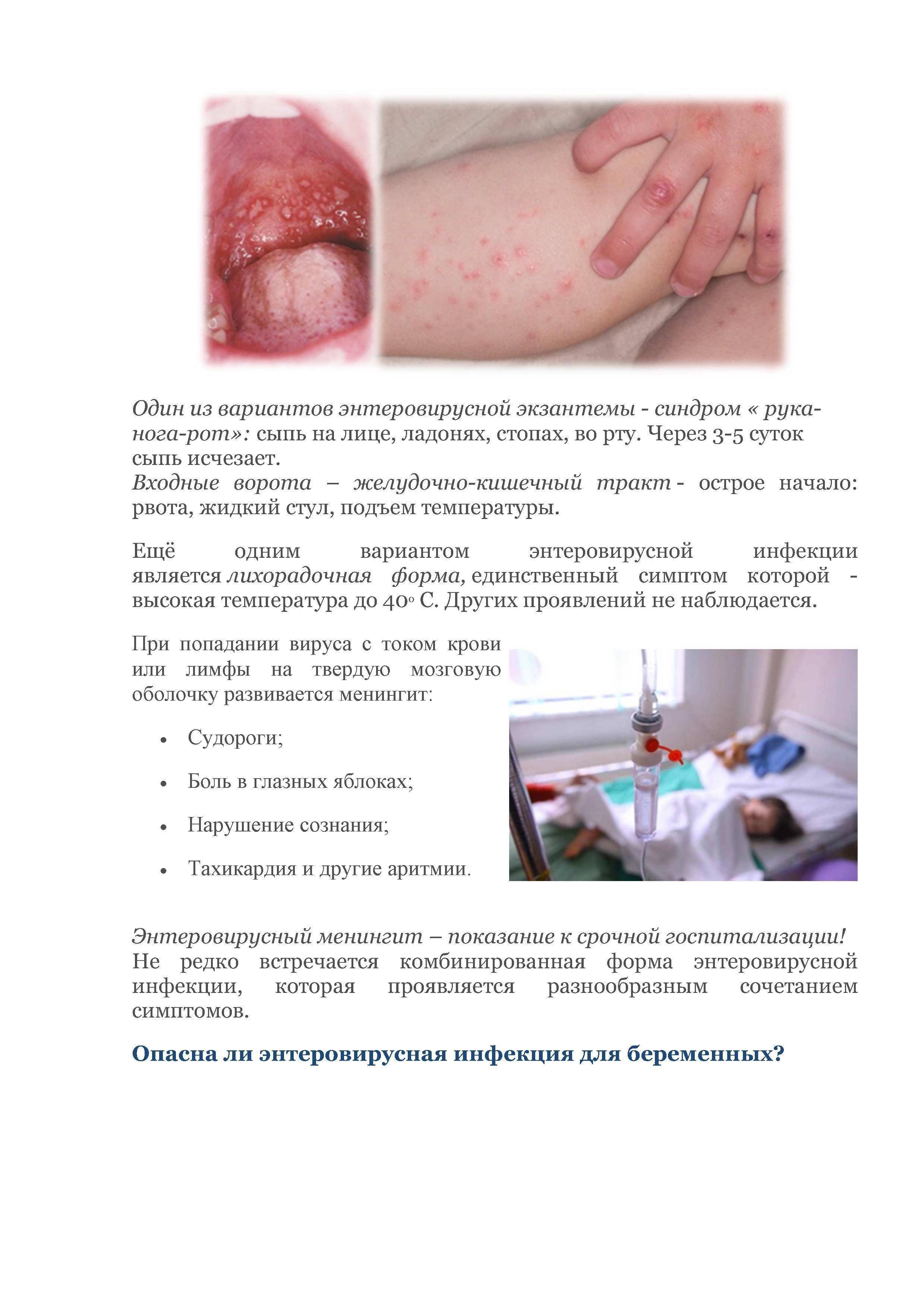 Синдром рука нога рот у взрослых лечение