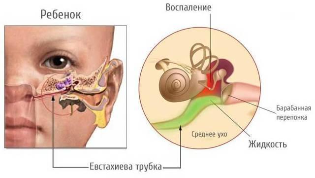 Лечение соплей на задней стенке носоглотки у ребенка