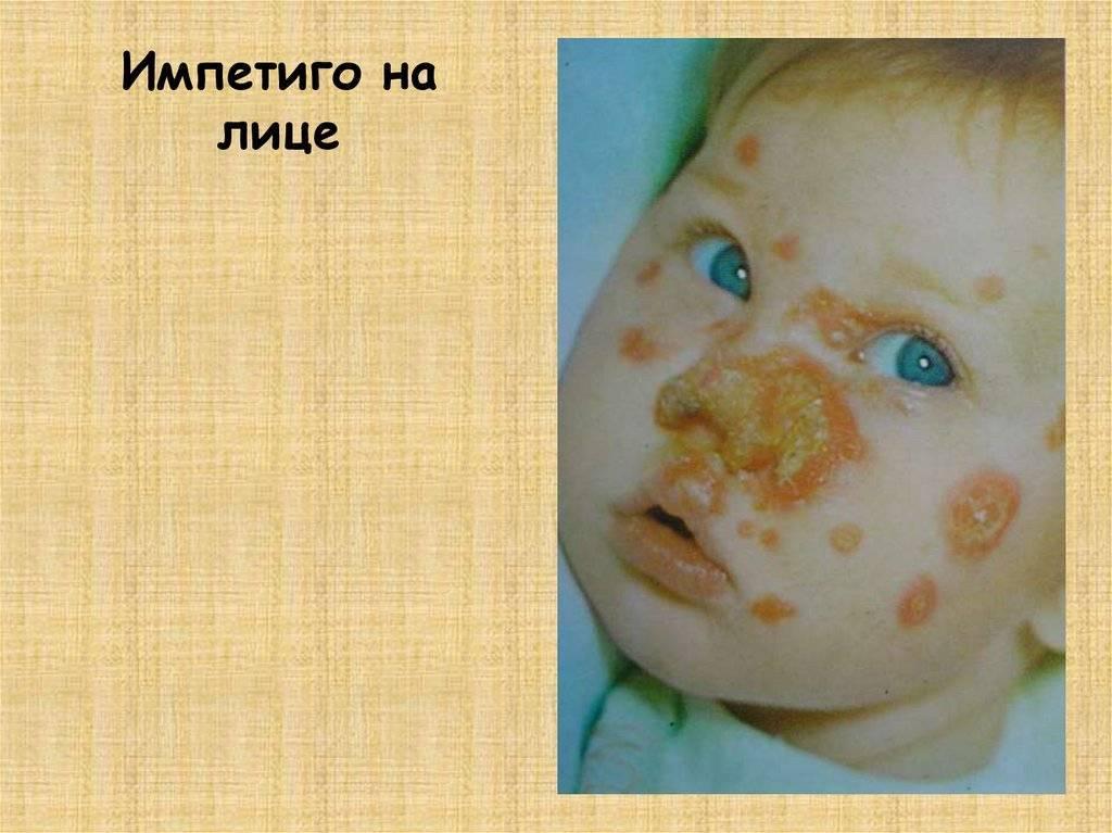 Импетиго у детей - что это такое и как лечить: фото, описание и лечение