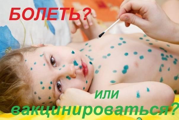 Прививка от ветрянки детям - когда делают