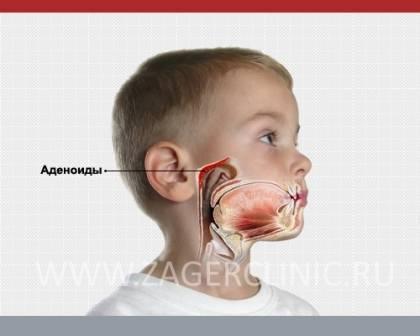 Аденоиды — причины, симптомы, диагностика и лечение аденоидов
