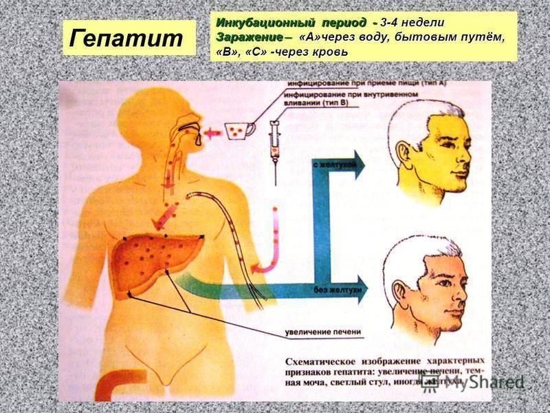Гепатит а и с: чем отличаются и чем похожи заболевания, особенности течения и вакцинации