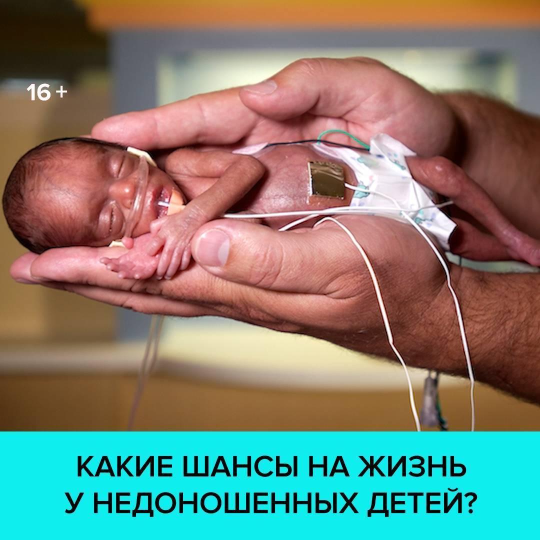 На каком сроке можно родить жизнеспособного ребенка?