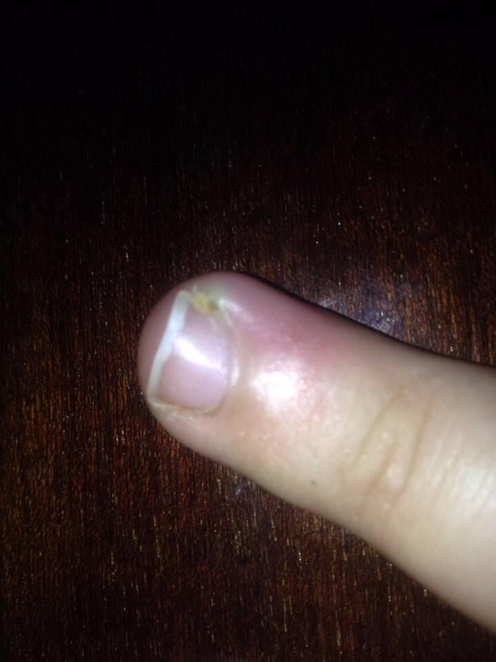 Нарывает палец на ноге возле ногтя: лечение и экстренные меры