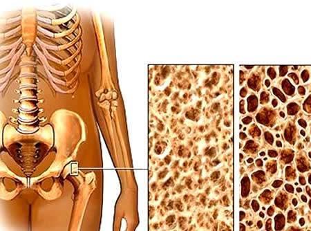 Причины, клиника и лечение остеопороза у детей