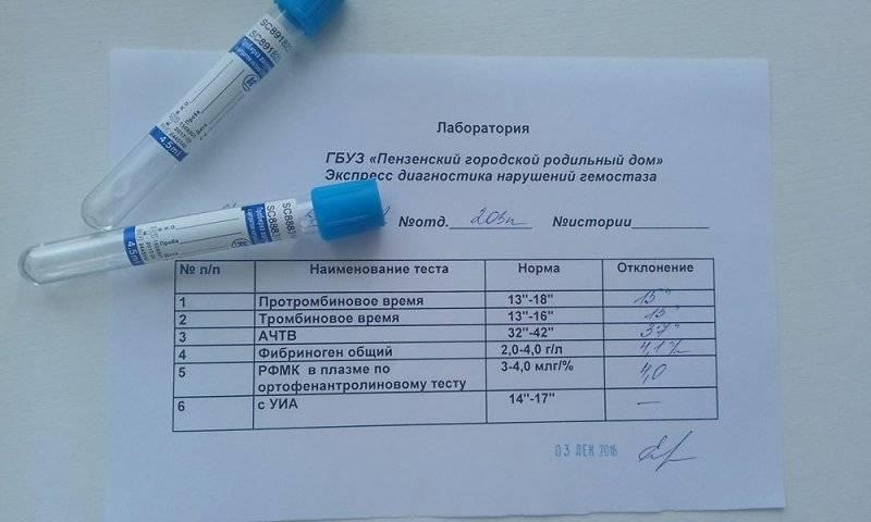 Коагулограмма (анализ крови на свертываемость): расшифровка, нормы — online-diagnos.ru