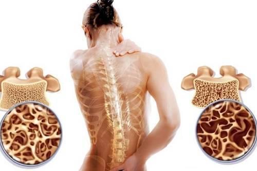Остеопороз у детей (ребенка, детский): лечение, симптомы