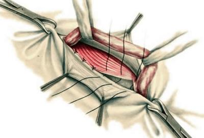 Лечение грыжи у младенцев: хирург или знахарка? симптомы и лечение паховой грыжи. как лечить пупочную грыжу?
