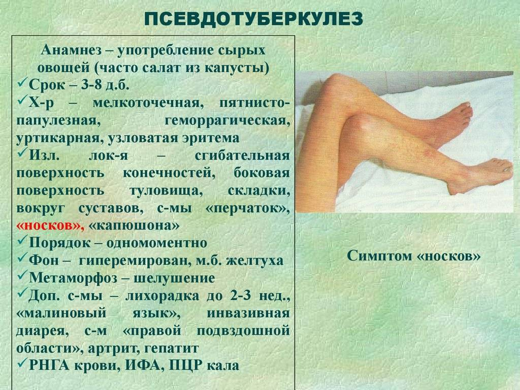 Псевдотуберкулез у детей (29 фото): симптомы и лечение, признаки на начальной стадии, лимфоузлы