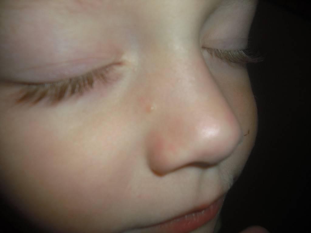 Белые точки на лице у грудничков