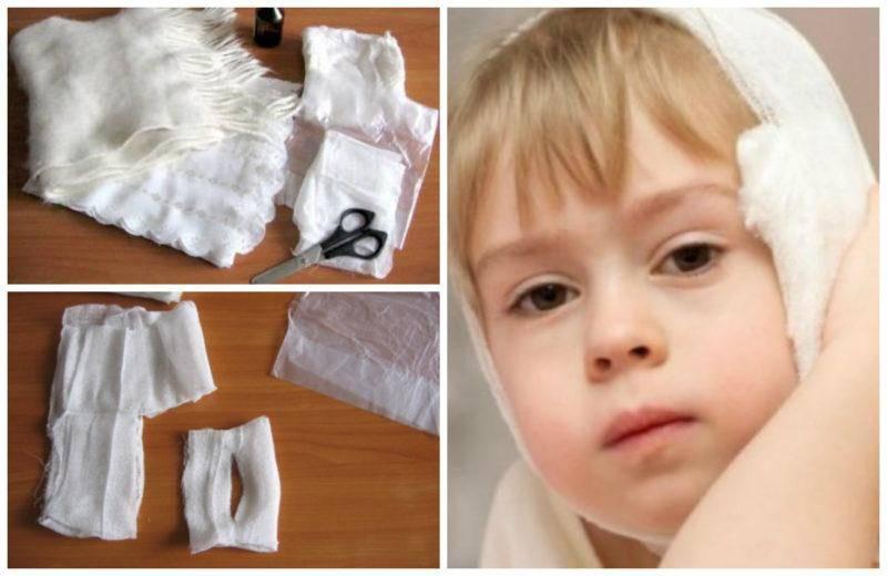 Согревающий компресс на ухо ребенку: алгоритм действий при отите и других заболеваниях
