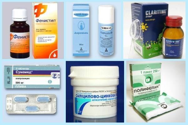Как избавиться от лишая на теле и быстро очистить кожу