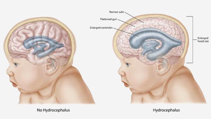 Симптомы повышенного внутричерепного давления у грудничков и детей постарше