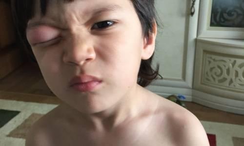 Сколько дней держится отек после укуса мошки в глаз