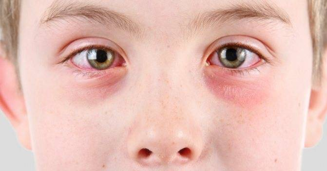 Ребенок чешет глаза и иногда нос — причины и способы решения проблемы - wikidochelp.ru